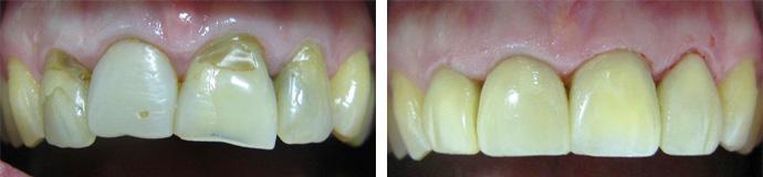 Реставрация фронтального зуба