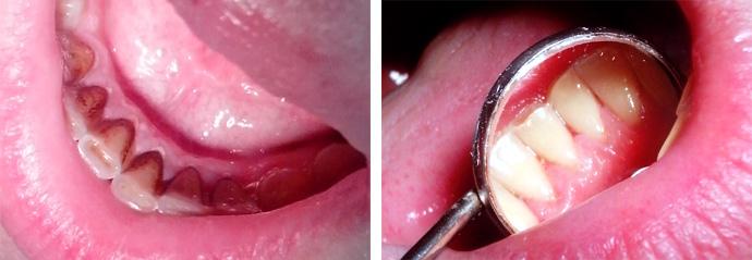Наддесневые  зубные отложения